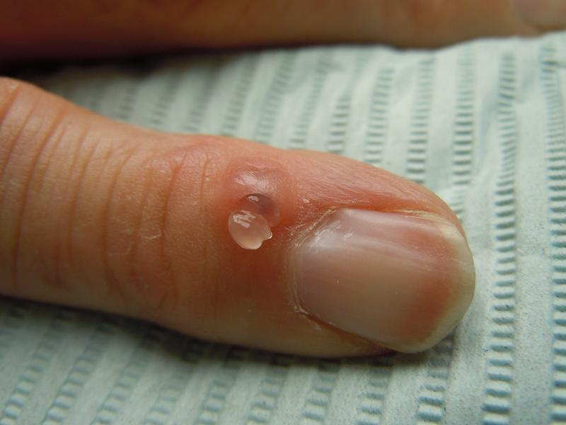 Cyst outside of vagina