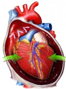 cardiac tamponade | med-health, Skeleton