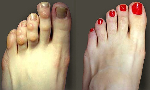 hammer toe | med-health, Skeleton