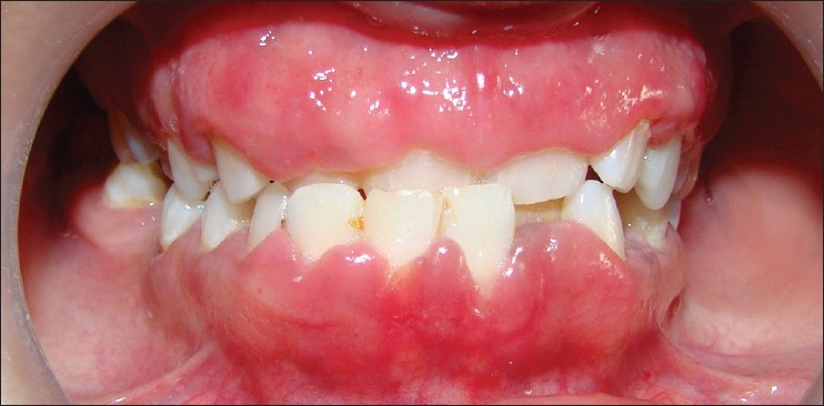 Swollen Gums Med Health Net