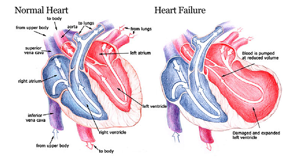 Heart Failure Images