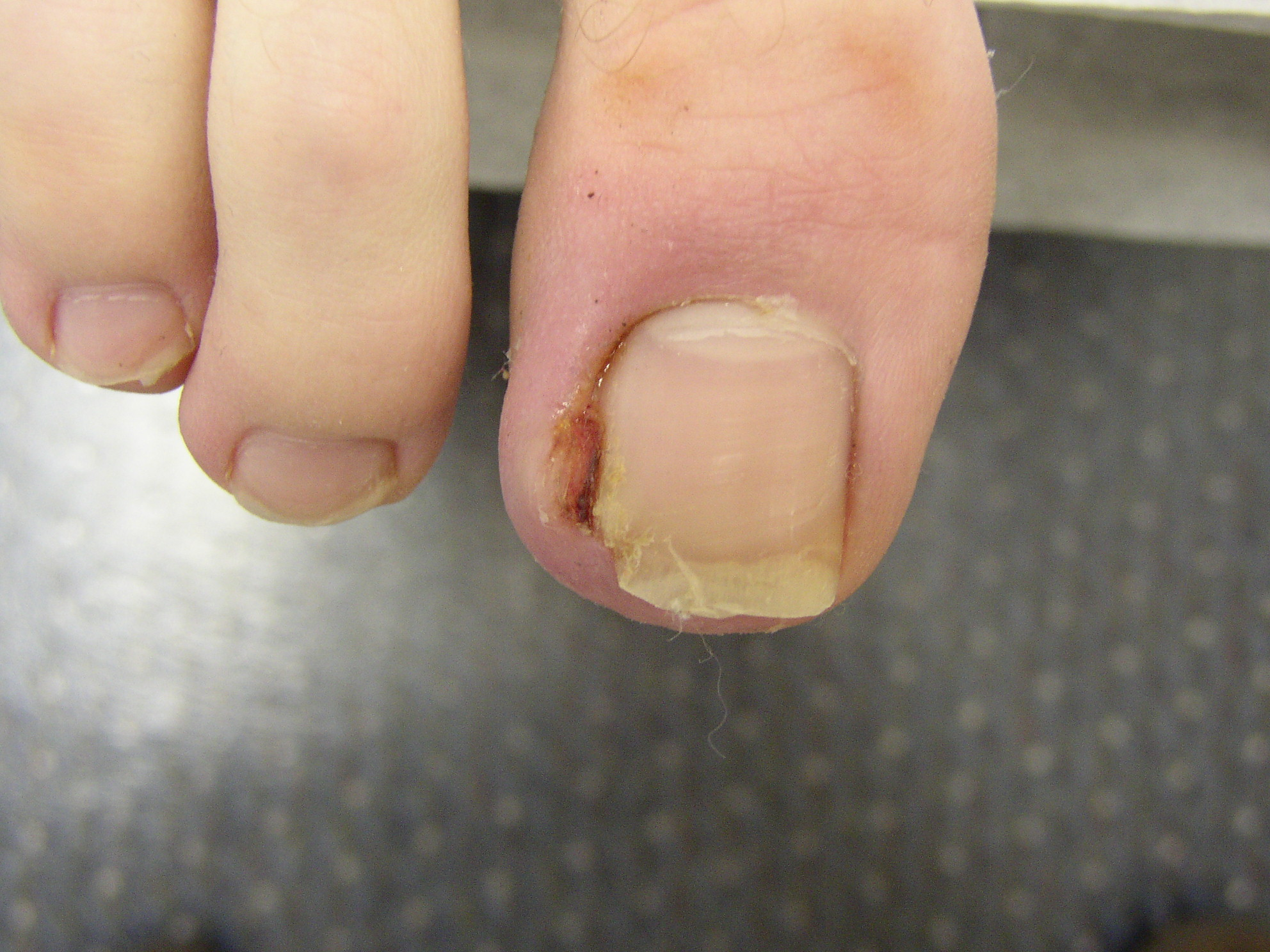 Nail Disorders | Med-Health.net