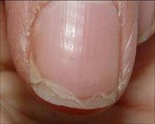 Nail Disorders   Med-Health.net