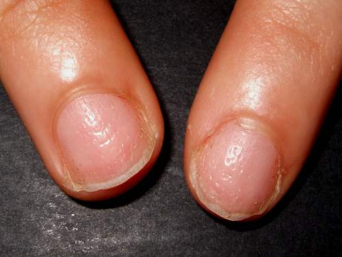 This Is Another One Of The Common Yet Disease Related Nail Disorders Pitting When There Are Little Depressions In
