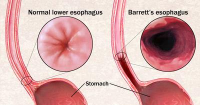 Barrett S Oesophagus Med Health Net