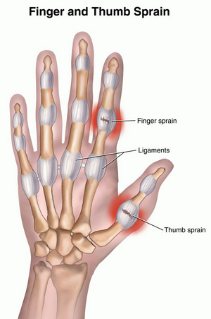 Sprained Thumb Med Health