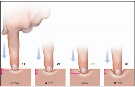 edema grading | med-health, Skeleton