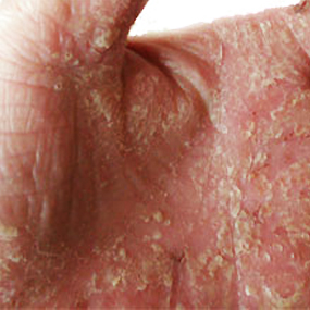Dry Skin: Types, Risk Factors and Treatments - Healthline