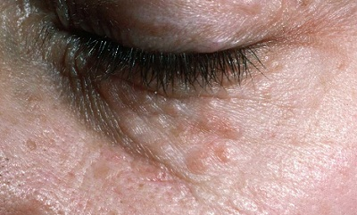 Why Are There Bumps Under My Eyes? | Med-Health net