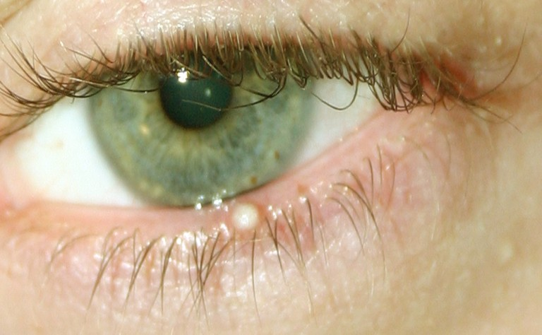 8 Causes of Eyelid Bumps and How to Get Rid of Them | Med-Health net