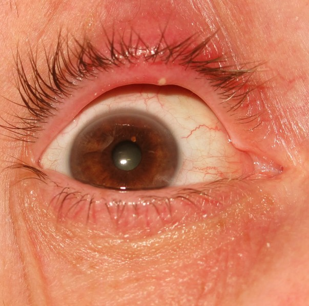 8 Causes of Eyelid Bumps and How to Get Rid of Them   Med