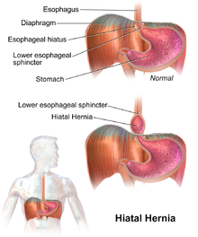 Medical Treatments And Natural Remedies For Hiatus Hernia