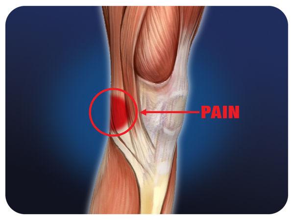 Боль в колене при сгибании возможные причины и лечение