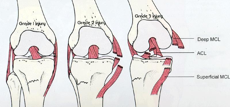 Mcl Injury