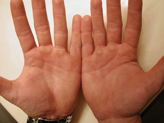 What Causes Lump To Appear In Your Palm Med Health Net